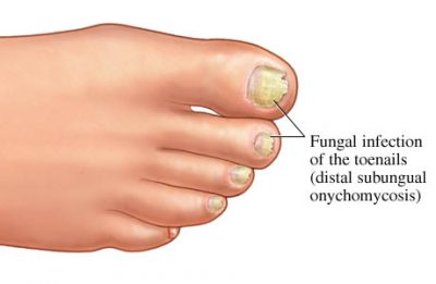 online prescription for athlets foot tinea ring worm